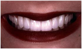 After porcelain dental veneers