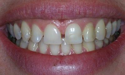 Before porcelain veneers vs dental bonding