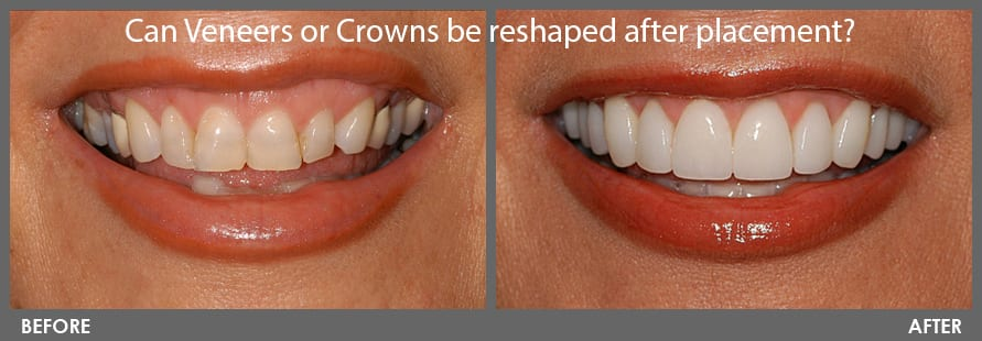 Can veneers or Crowns be reshaped after placement