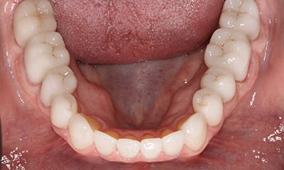 After dental reconstruction, Emax crowns and Veneers