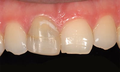 porcelain crown before