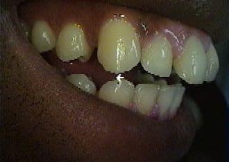 dental-veneers-before-after