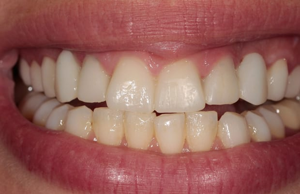 before-veneers.jpg