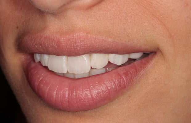 final-veneers-side-view.jpg