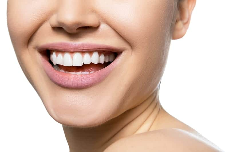 All About Los Angeles Veneers