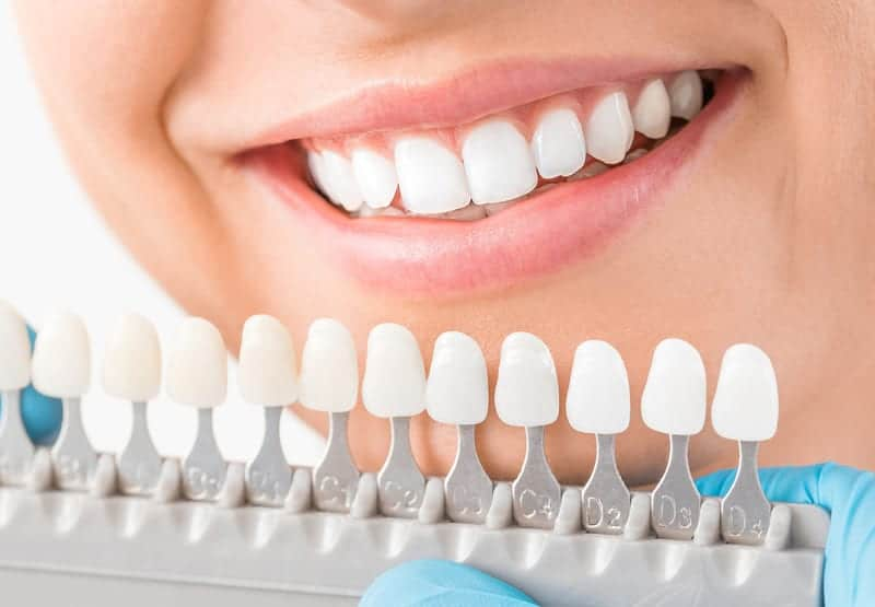 When You Need a Cosmetic Dentist in Los Angeles