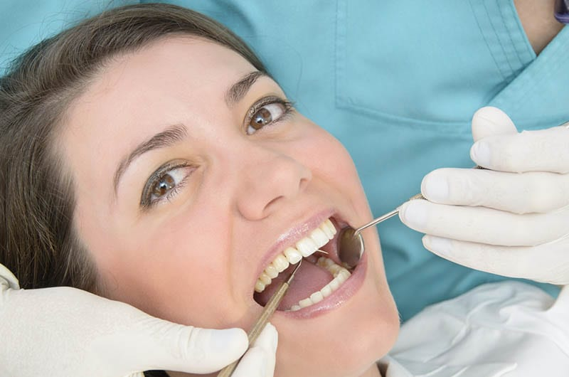 Dental Veneers in Beverly Hills