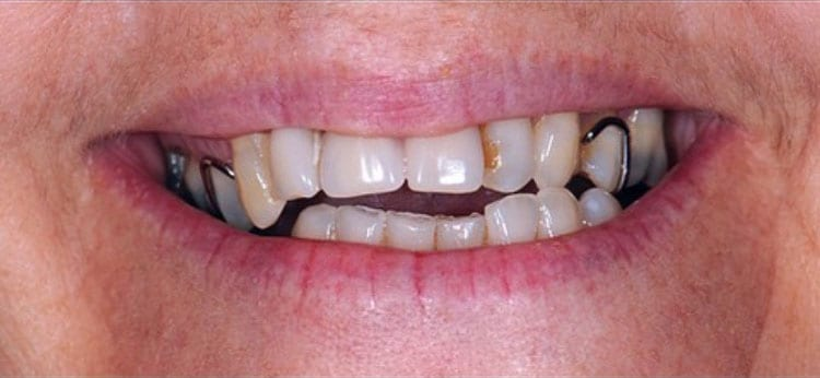 before-dental-implants-Beverly Hills