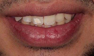 Smile Makeover for Misaligned Teeth During