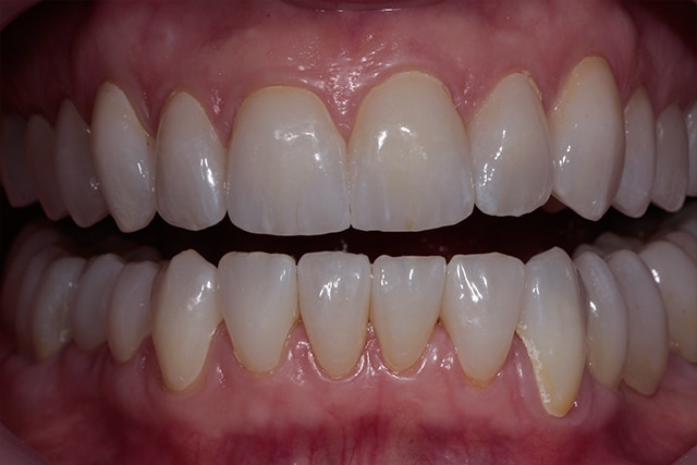 After Zerconia Veneers