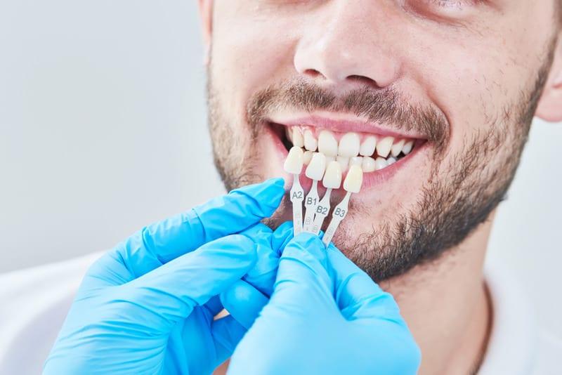 top veneer dentist