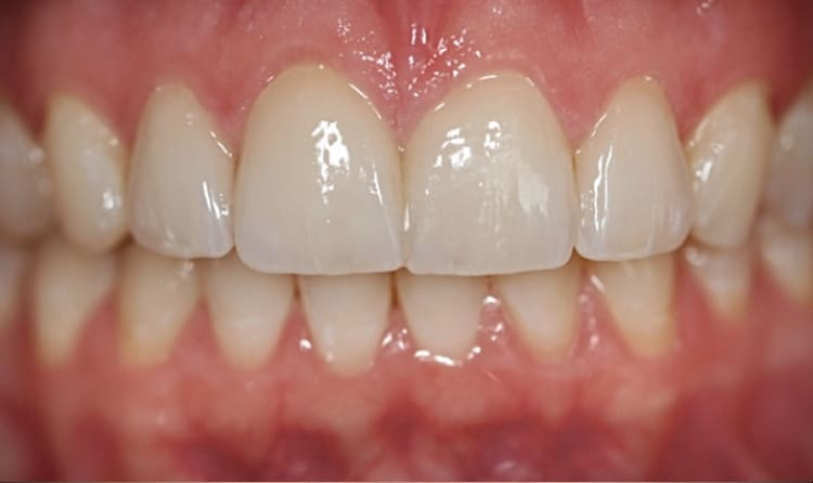 before-after-porcelain-veneer